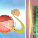 Nano-Retina - działanie implantu